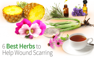 6 Best Herbs to Help Wound Scarring