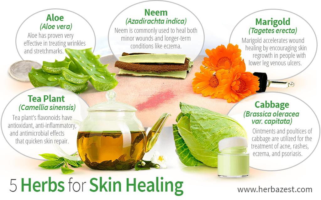 5 Herbs for Skin Healing