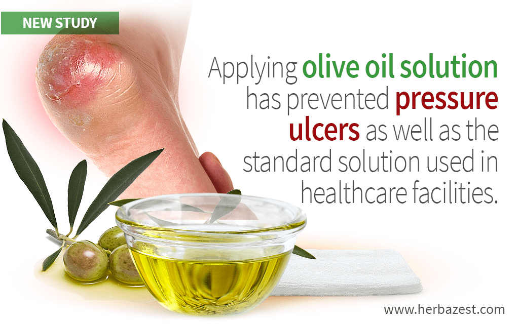 Topical Olive Oil Preparation Effective for Pressure Ulcer Prevention