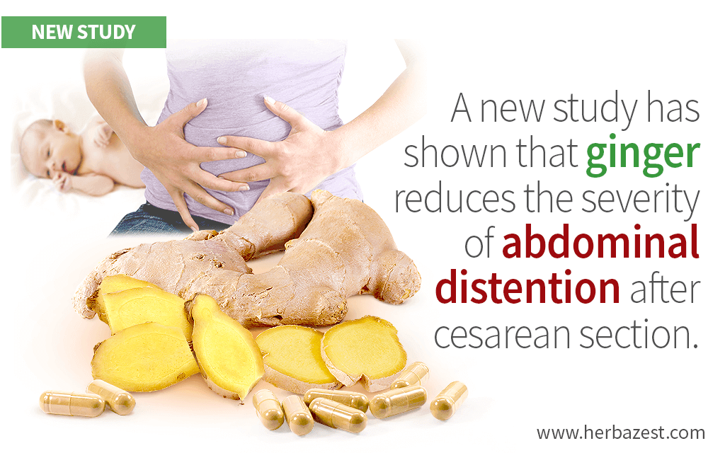Ginger Proven Effective in Relieving Abdominal Distention after C-Section